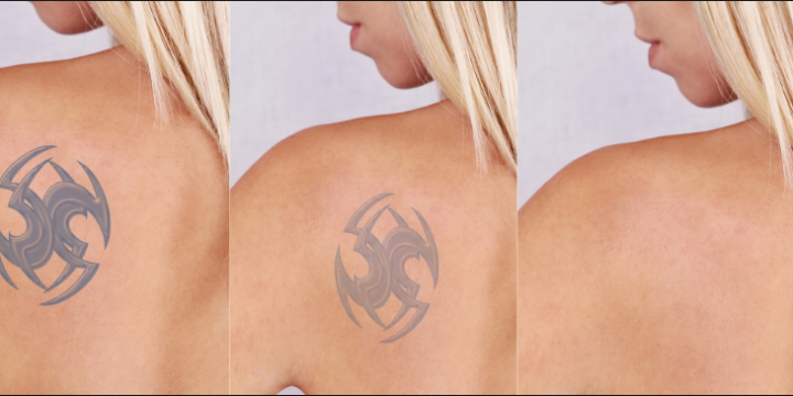 Things You Must Know About Tattoo Removal