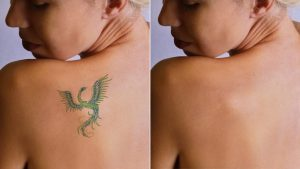 laser tatoo removal