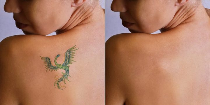 Is Laser Tattoo Removal Safe?