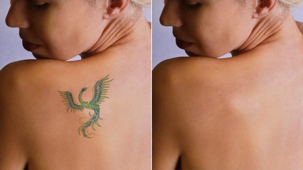 laser tatoo removal