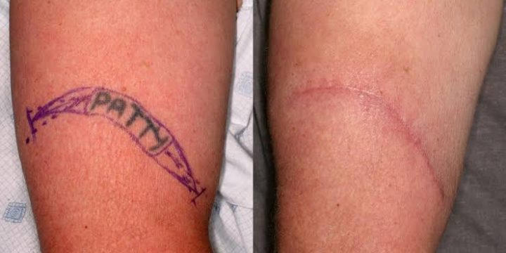 Different Tattoo Removal Methods You Must Know