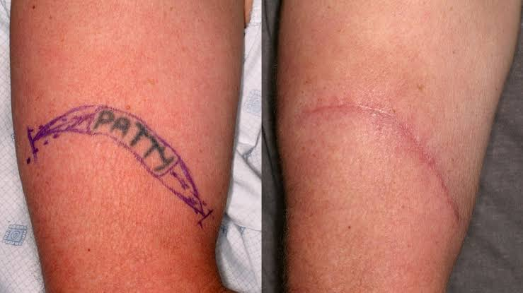 best tattoo removal gold coast