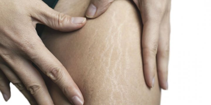 Factors To Be Noticed While Looking For Stretch Mark Treatment